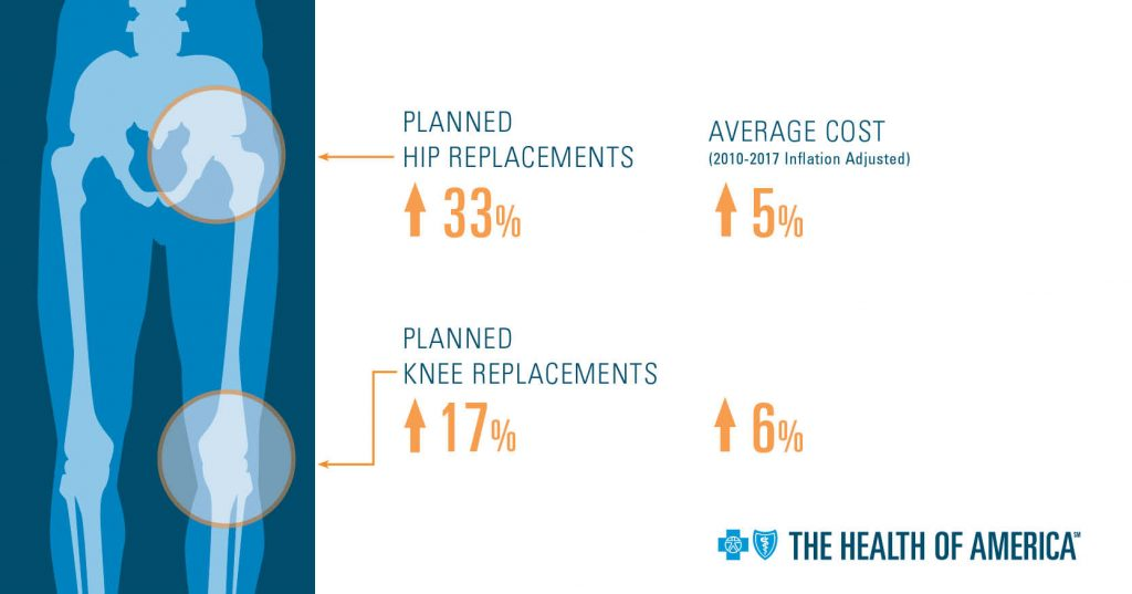 Infographic with hip bone and knee circled. Data shows planned hip replacements are up 33%, with an average cost (2010-2017 inflation adjusted) increase of 5%. Planned knee replacements are up 17%, with an average cost (2010-2017 inflation adjusted) increase of 6%