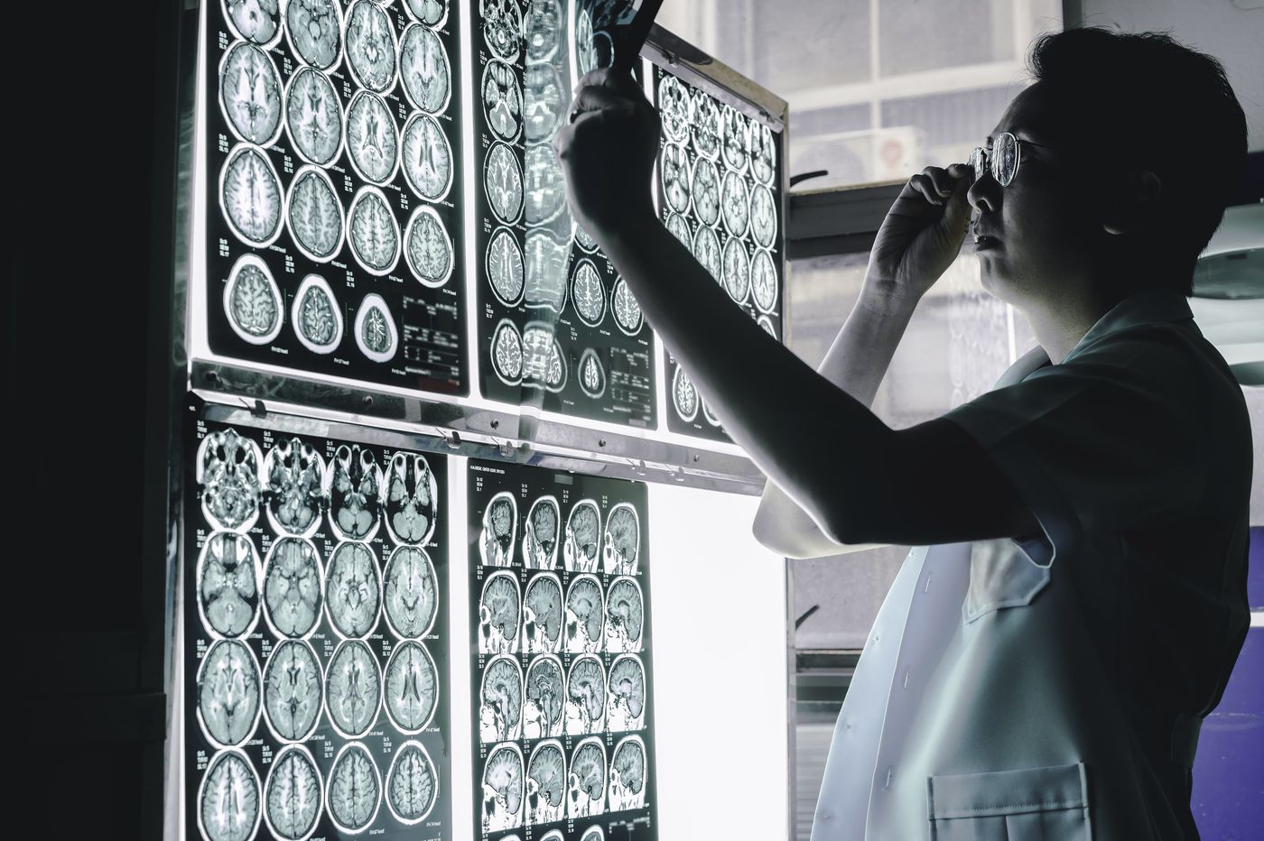 doctor evaluating various brain scans